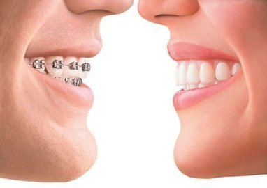 Invisalign Studio City