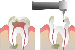Root Canals Studio City