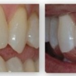 studio-city-teeth-whitening